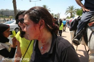 A protester injured by police at a demonstration against the Prawer Plan in Beersheba,